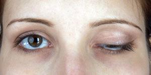 Что делать если века правого глаза сужается?