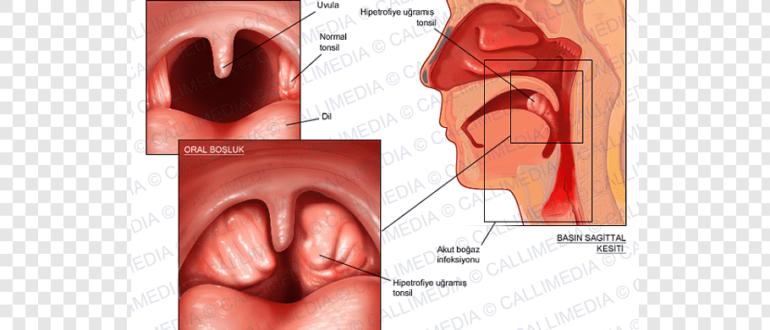 Частые фарингиты и аденоидит