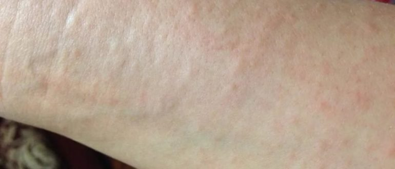 Мелкие пятна после аллергии