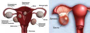 Миома матки интрамуральная, фоликулярная киста левого яичника
