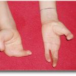 Могла ли передаться уреаплазма ребенку 5 лет