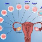 Напряжен живот при беременности