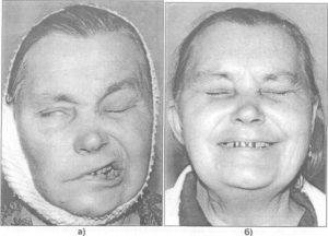 Менингиома, после операции парез лицевого нерва