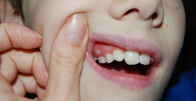 Нарост на десне около зуба