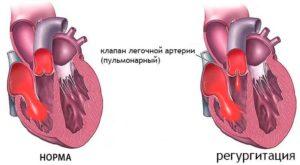 Дисфункция клапана лёгочной артерии