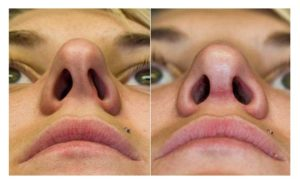Виноват ли шип носовой перегородки?