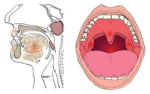 Чувство удушья в горле после удаления зуба