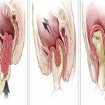Восстановление организма после удаления матки