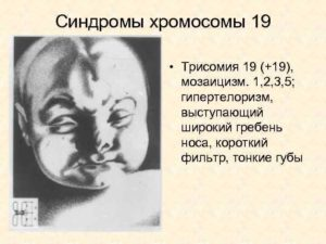 Мозаицизм 19 хромосомы