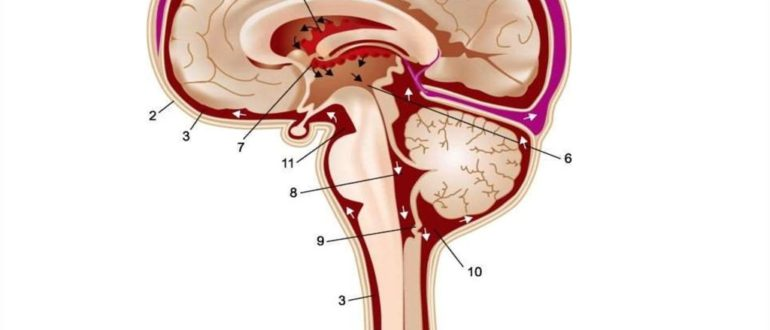 Дилатация ликворной системы головного мозга и субархидаидального пространства