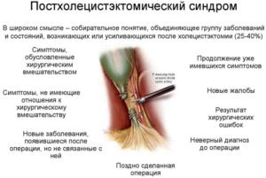 Диарея после приема Клацид СР и постхолецистэктемический синдром