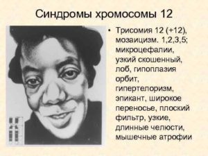 Мозаицизм 12 хромосомы
