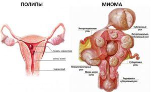 Миома матки и патология эндометрия