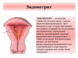 Эндометрий после родов