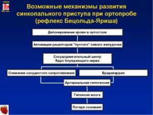 ВСД с редкими синкопальными состояниями