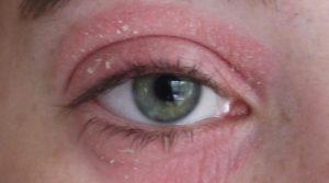 Чешутся глаза, появляются корки, покраснение, стянутость кожи под глазами, мешки.