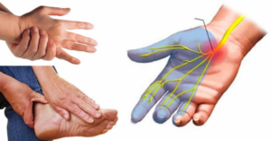 Дегидратация и онемение конечностей