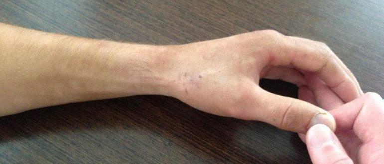 Частые переломы рук в одном и том же месте