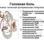 Воспалительный тип мазка, клетки МПЭ