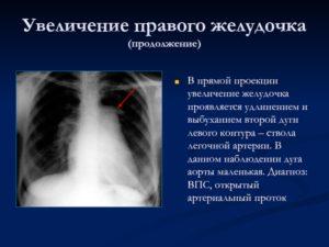 Выбухание по левому контуру 2 дуги аорты на рентгенограмме