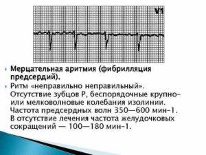 Мерцательная аритмия, высокое давление