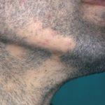 Может ли от тайм-фактора болеть грудь?