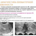 Эритроциты и лейкоциты повышены