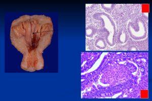Внутренний эндометриоз и железистая гиперплазия эндометрия