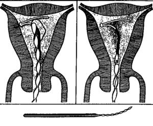 Экспульсия внутриматочной спирали