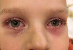 Чешутся глаза у ребенка