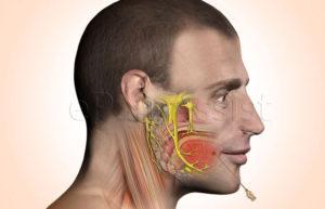 Воспален Тройничный нерв