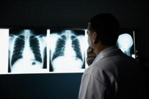 Может ли рентген спровоцировать развие онкологии