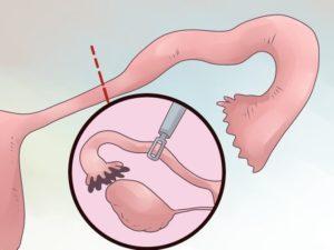Выделения после удаления трубы