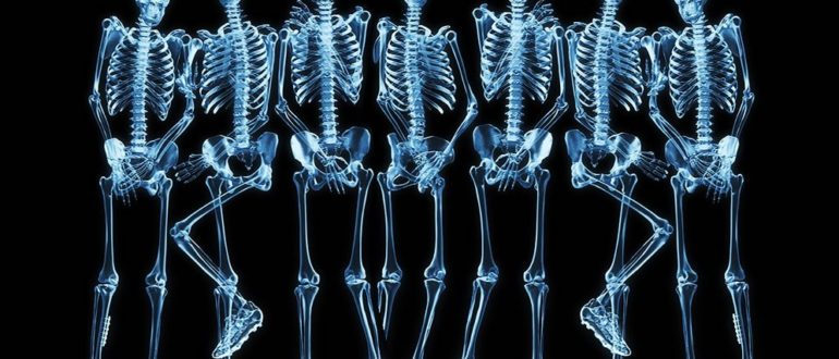 Много рентгенов