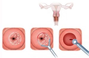 Можно ли делать биопсию шейки матки на 19 день цикла?