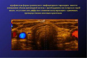 Что такое локусы васкуляризации