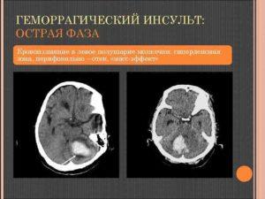 Микрокровоизлияния в левой гемисфере мозжечка