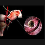 Возможна ли беременность после месячного приёма ок ярина плюс