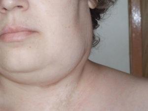 Воспаление лимфоузла на шее и зубы