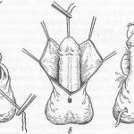 Эндометриоидная киста: тактика лечения и вопросы по ОК