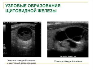 Узловые образования щитовидной железы