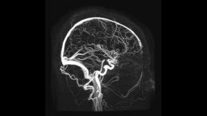 Мои головного мозга или сосудов