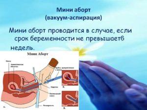 Мини аборт