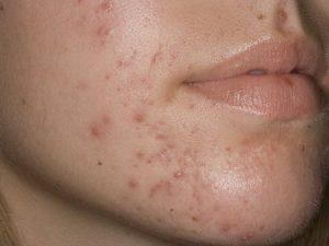 Дексаметазон и высыпания на лице