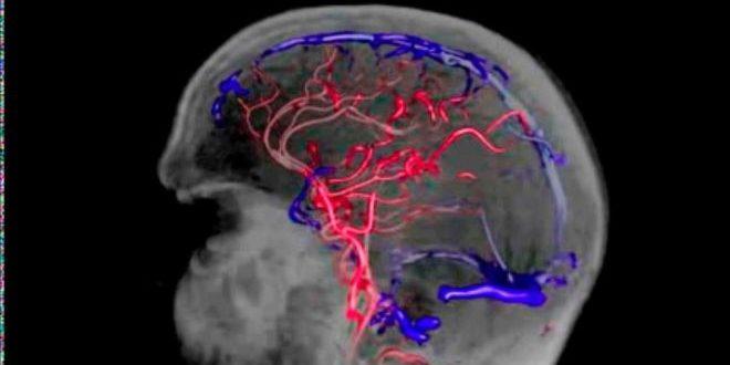 Венозная дисциркуляция в системе глубоких вен головного мозга