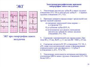 ЭКГ при гипертонической болезни