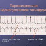 Влияние редуксина на анализ крови