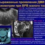 Микроаденома гипофиза (пролактинома)