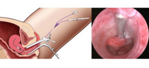 Восстановится ли сам эндометрий?