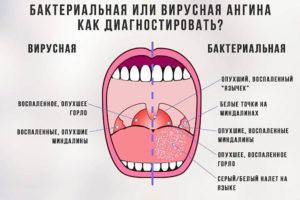 Вирусный или бактериальный тонзиллит